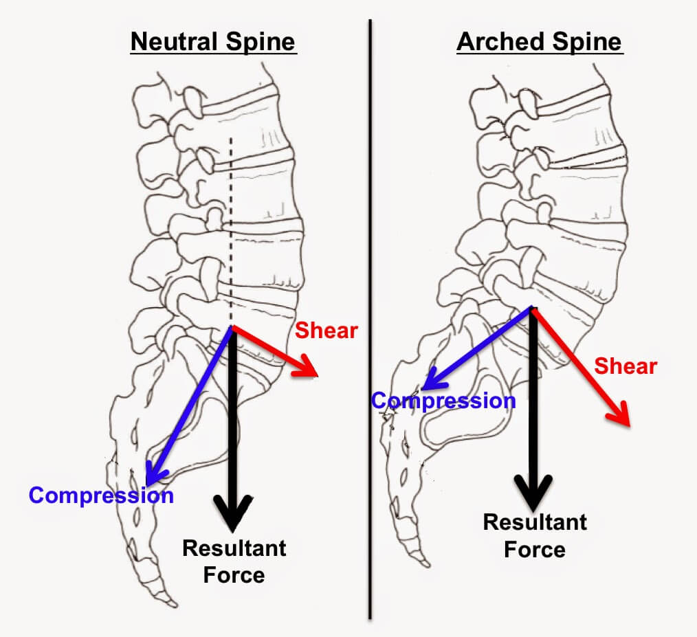 The Diagram Above Explains The Different Stages Of Disc Herniation